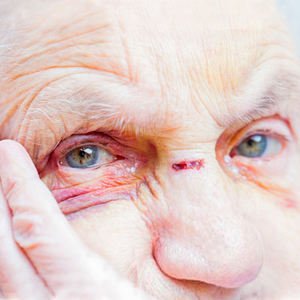 bs-ElderlyWoman-193371076-400