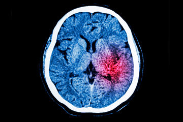bs-Ct-Scan-Of-Brain-91233920-360
