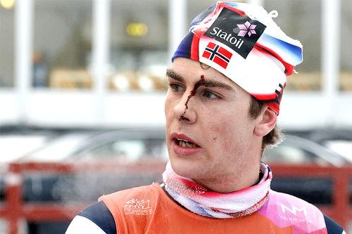 Mattis Stenshagen med tydelige spor i ansiktet etter 30 km skiathlon under NM på Gåsbu 2018. Foto: Erik Borg.