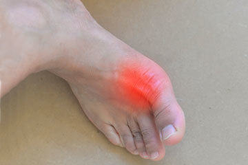 bs-Painful-Gout--205385137-360