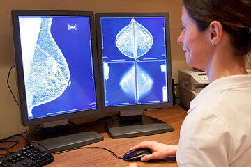bs-Mammography-test-14967482-360