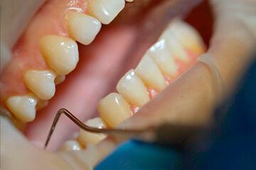 bs-Dentist-Examining--286161844-360