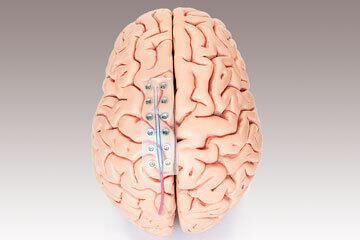 bs-Electrode-Brain-268449571-360