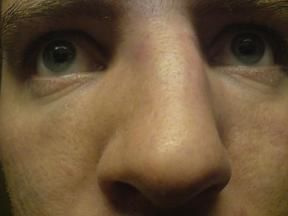 ronny knekt nese